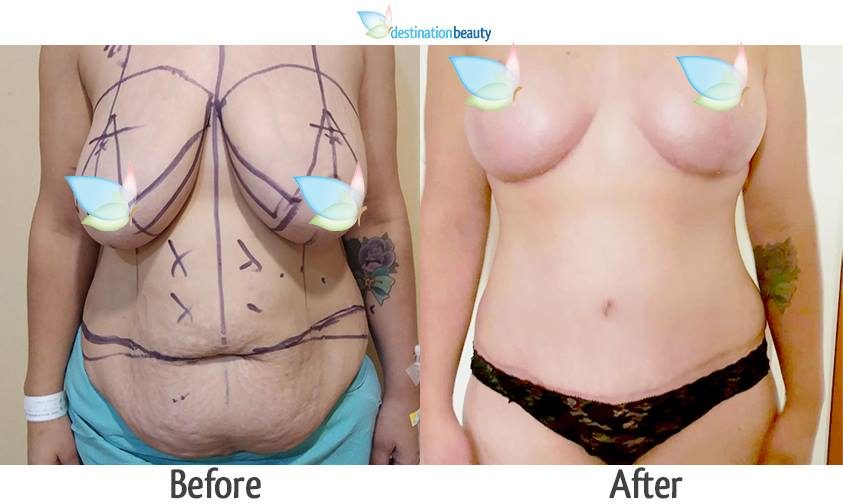 breast reduction and extended tummy tuck 1-1